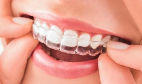 Lee más sobre el artículo Novedades Ortodoncia 2021