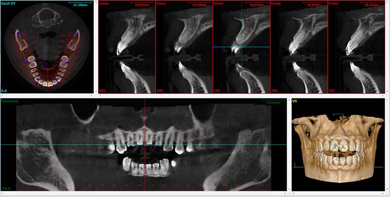 Tecnología CBCT para el tratamiento de endodoncia